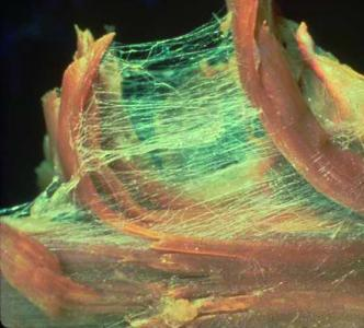 Dissection of Fascia