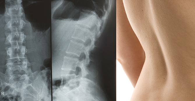 scolosis xray