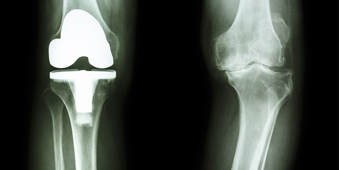 Knee Joint Replacement X-Ray